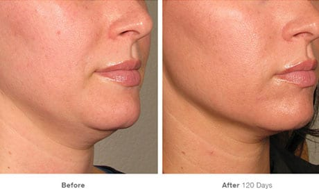 Microneedling and Microneedling with PRP