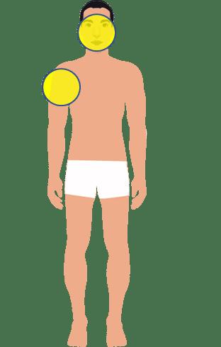 target-area-botox