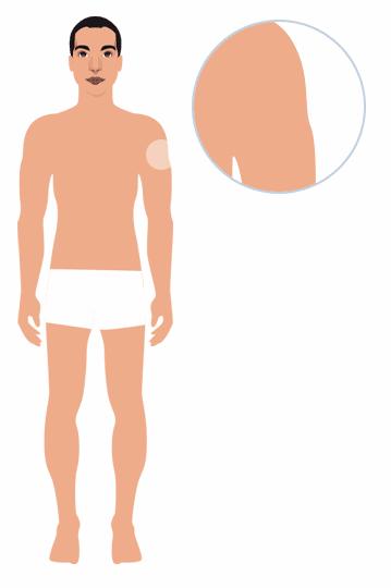 target-area-picosure-male