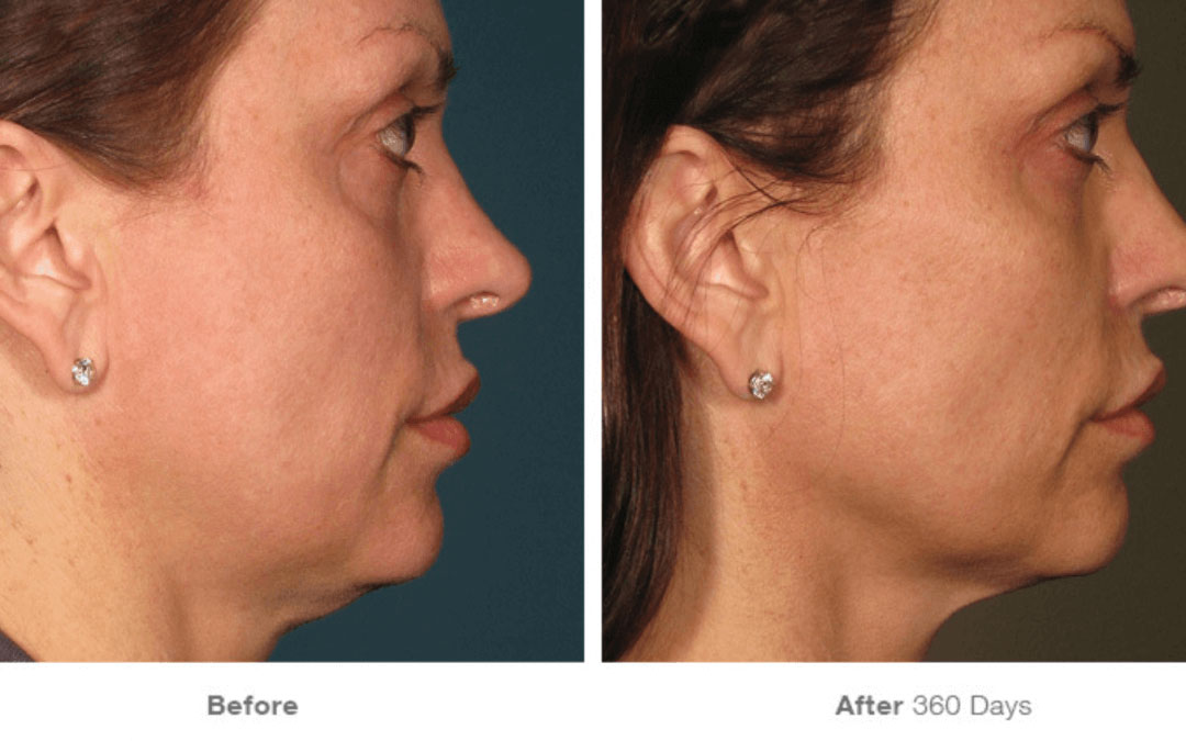 ultherapy before after