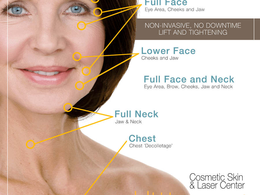 ultherapy diagram