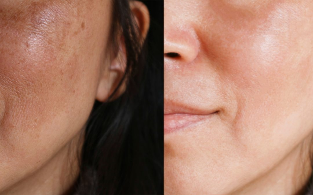 uneven skin texture before after 1080x675 1
