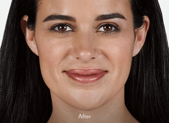 Lip Fillers Tucson - vollure-after
