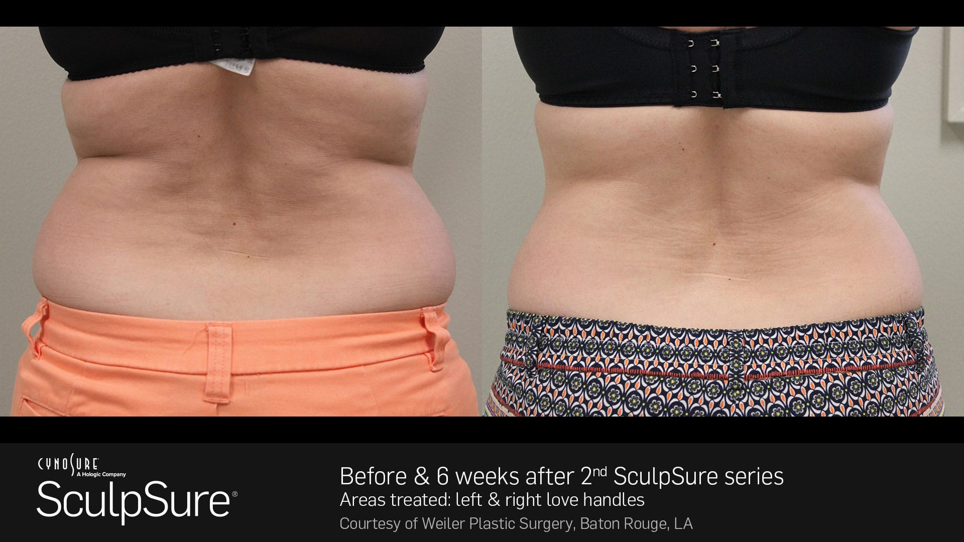 sculpsure tucson