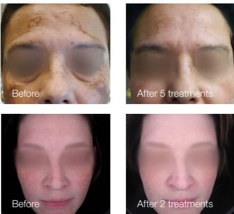 piqo4 laser treatment