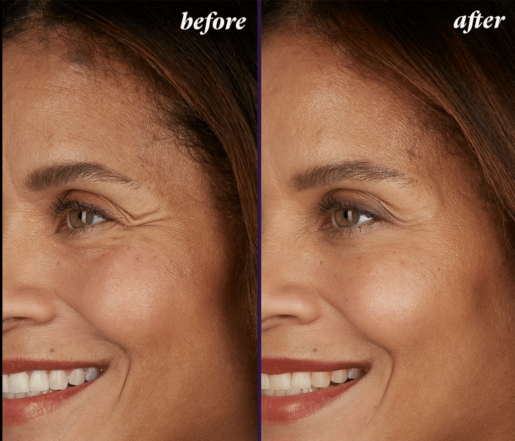 Botox and Juvederm before and after